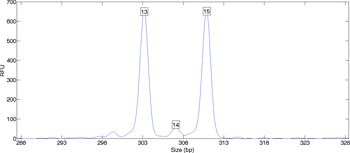 Figure 1. DNA data showing two peaks from which an individual's (13, 15) genotype can be inferred.