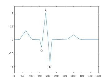 Figure 2.  A QRS complex from an ECG signal.