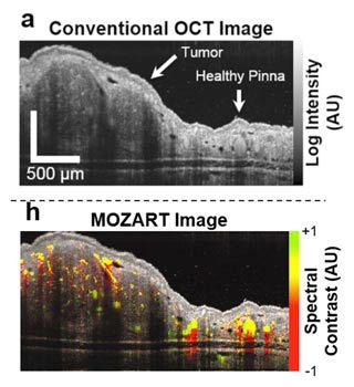 Figure 1. Top: A conventional OCT image, showing the tissue structure of a tumor in the ear pinna of a live mouse. Bottom: A MOZART image of the same tissue region. The spectral analysis reveals LGNRs in the blood vessels.