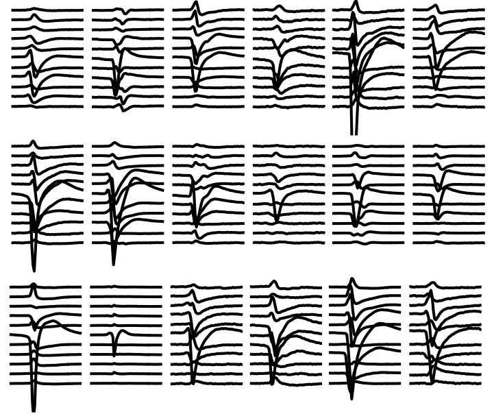 Figure 4. Plots of 18 individual spike shapes as captured by 11 different channels.