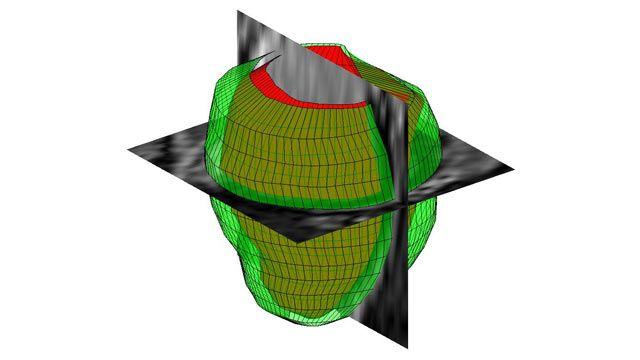 Traitement d'images 3D avec MATLAB