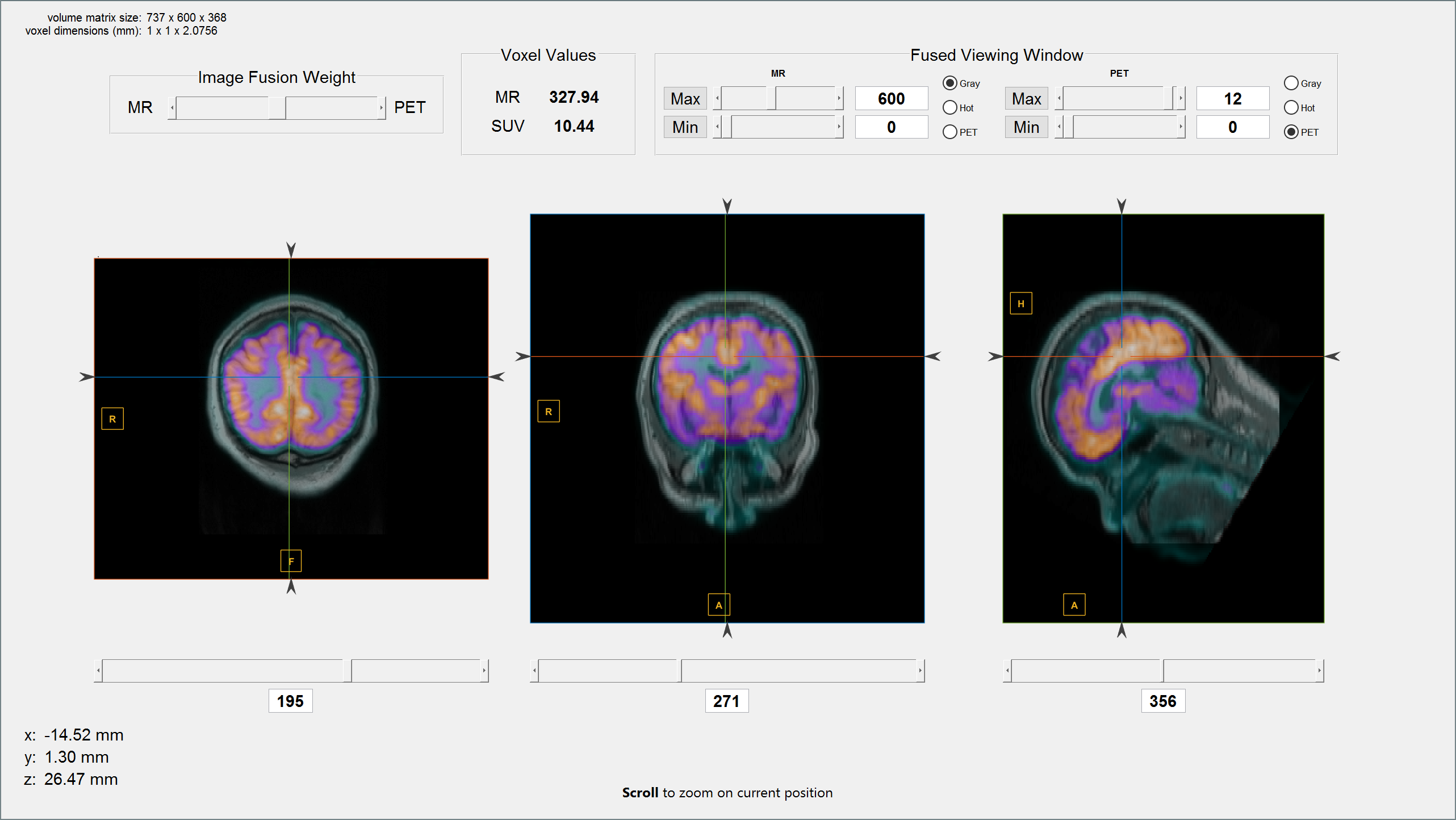 Medical Image Reader And Viewer File Exchange Matlab