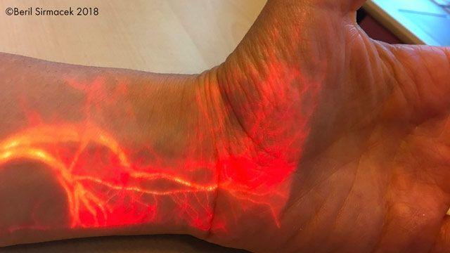 Projection du flux sanguin en temps réel via la réalité augmentée.