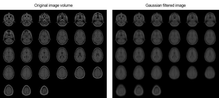 Cet exemple vous montre comment lisser les IRM d'un cerveau humain en utilisant le filtrage3D de Gauss.