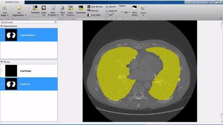 Mettez à profit les fonctionnalités 3D, y compris l'application VolumeViewer disponible dans Image ProcessingToolbox.