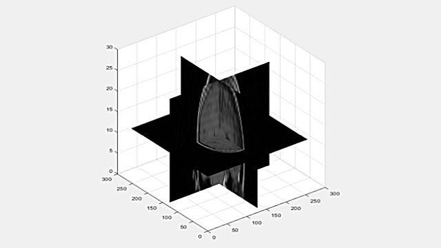 Vue d'un volume3D sous forme de tranches en 2D.