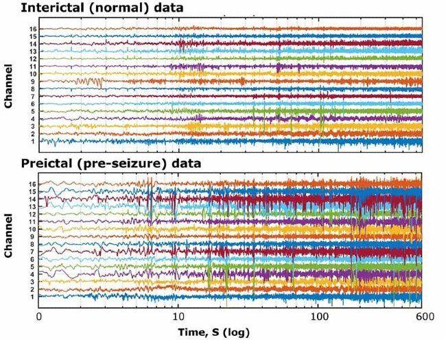 Plusieurs canaux de signaux correspondant à des enregistrements d'EEG obtenus chez un sujet épileptique, en période normale et avant une crise.