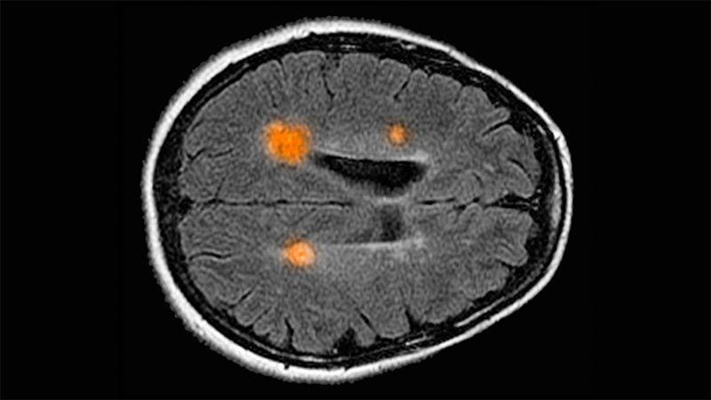 Cartographie du cerveau humain
